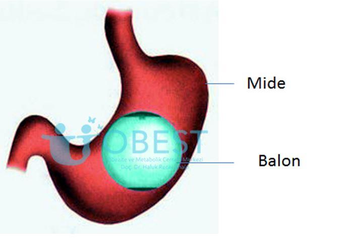 mide balonu ameliyatı