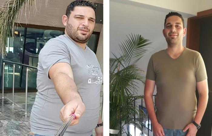 obezite-tedavisi-oncesi-sonrasi