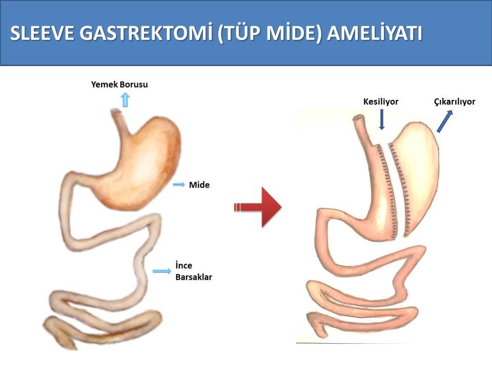 tüp mide ameliyatı